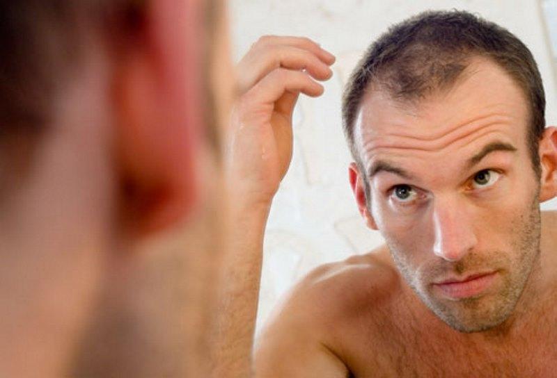 ما هي أسباب الصلع عند الرجال تحديداً ؟!